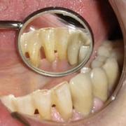 Mozgó fogak sínezése