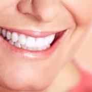 Örömteli fogfehérítés